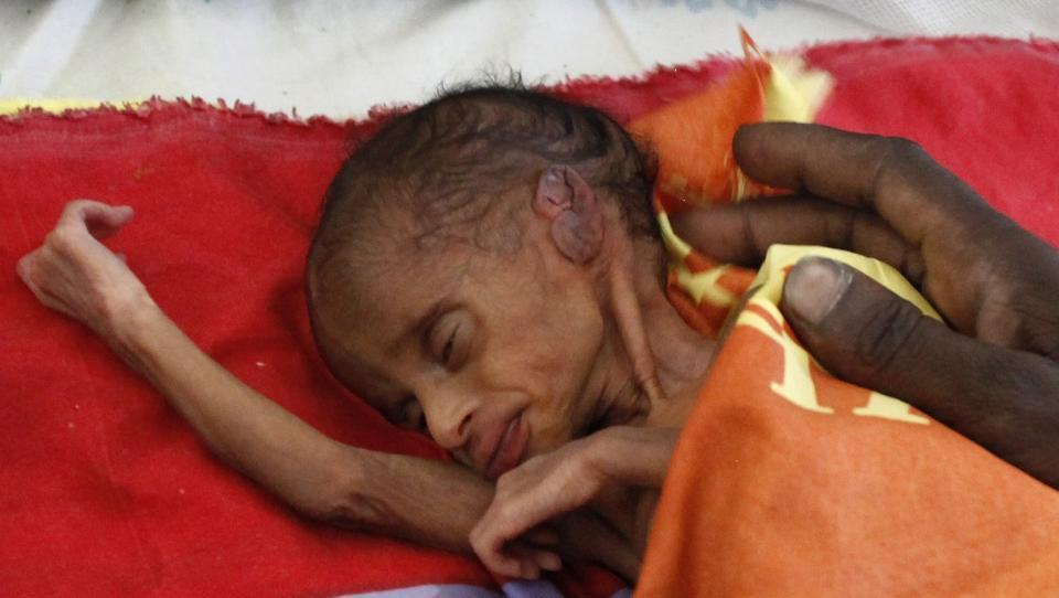 Humanit 230 R Krise Og T 248 Rke Herjer S 248 R Sudan Nyheter