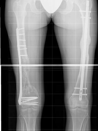 Bein i stål: I høyrebeinet har Karina fått erstattet bein med en 12 cm. lang jernskinne. Foto: Ullevål sykehus