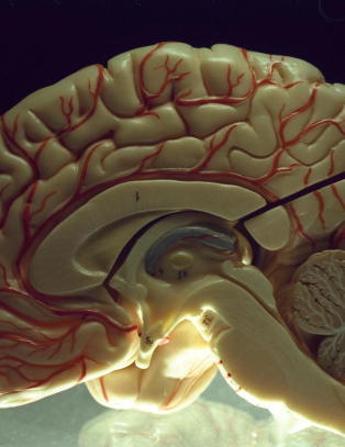21-�ring tatt for � selge stj�lne hjerner p� Ebay