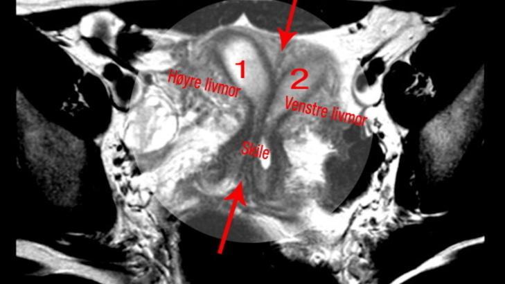 smerter i livmor kjønnslepper før og etter
