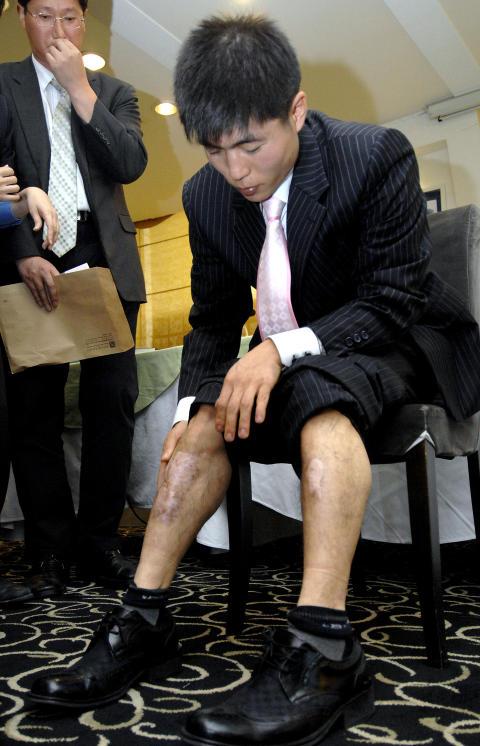 TORTURERT: Shin Dong-Hyuk er den eneste kjente personen som har klart � flykte fra en av totaltkontrollsonene i et nordkoreansk fengsel. Her viser han arrene han fikk da han r�mte under en pressekonferanse i Seoul i 2007. Foto: AFP PHOTO/JUNG YEON-JEFoto: AFP PHOTO/JUNG YEON-JE