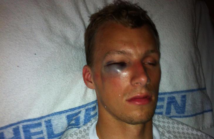 SMELL: Andre Hansen fikk en kraftig bl�veis etter duellen med Kovacs. Her er han p� Drammen Sykehus. Foto: Privat
