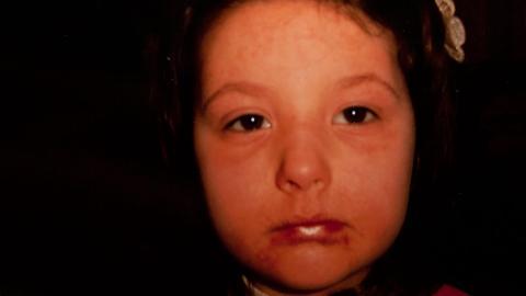 ALLERGIENS ANSIKT: Slik ser Islas ansikt ut n�r hun f�r en allergisk reaksjon. Foto: Tom Deecken