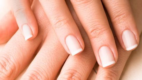 HVITE FLEKKER: Dette er skader p� neglen og ikke kalkmangel slik en del tror.  FOTO: Thinkstock