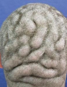 Sjelden hudsykdom f�r hodebunnen til � likne hjernen