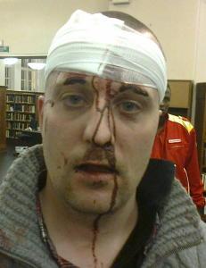 - To menn holdt ham nede, mens den tredje tok fart og sparket i ansiktet