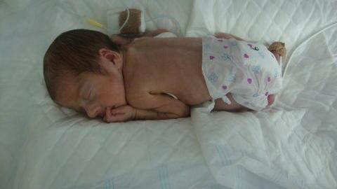 PREMATUR: Oliver ble f�dt tre m�neder for tidlig, og veide bare i overkant av 1000 gram da han kom til verden. Foto: Privat