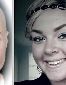 100.000 norske kvinner lider av h�rtap