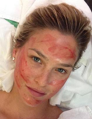 Injiserer blod i ansiktet for finere hud