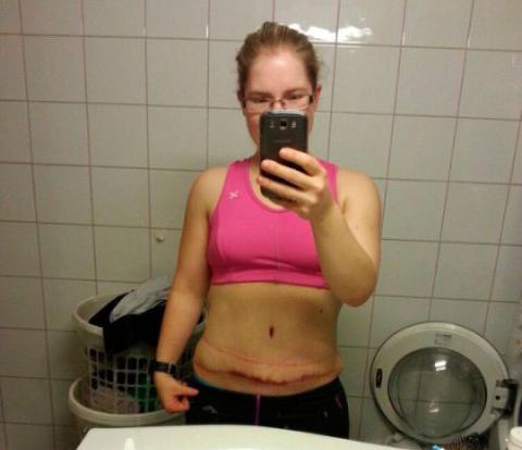 øktxlyst kvinner smerter øverst i magen