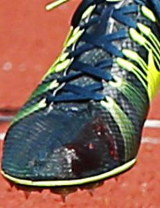 Blodet piplet ut av Ingebrigtsens sko under EM-finalen