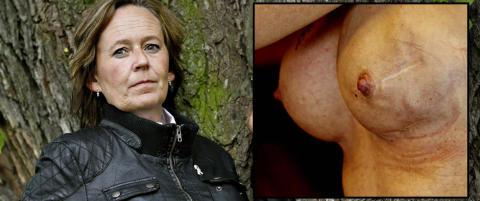 - Skulle ha unders�kt brystene hennes f�r inngrepet