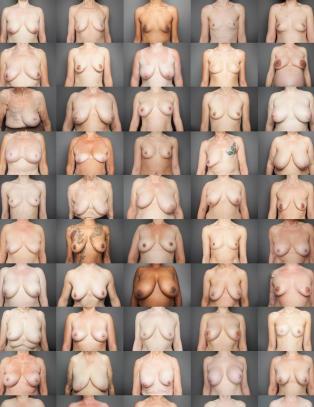 Slik tar fotografen Laura et oppgj�r med retusjerte bryster