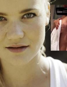 Sandra Lyng m�tte fjerne fire svulster fra brystet