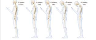 Advarer mot mobilnakke: Som � ha belastningen av fire bowlingkuler p� nakken