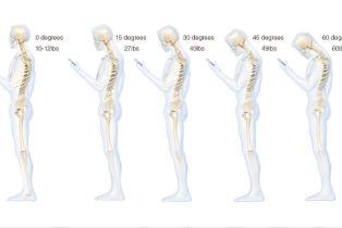 Dette skjer med nakken din n�r du taster p� mobilen