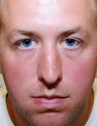 Politimannen som skj�t 18-�ringen: - Min samvittighet er ren