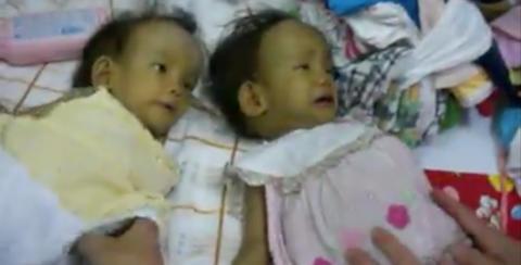 Tvillingene er d�ende, og far kan bare redde �n av dem