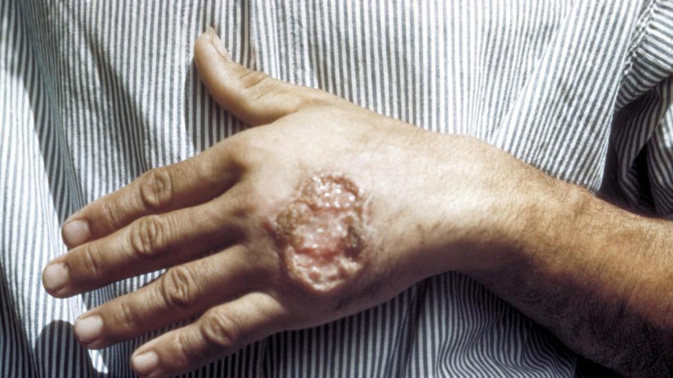 STORE SÅR: Infeksjonen leishmaniasis kommer i flere utgaver. En av dem etterlater seg store åpne sår på hudoverflaten slik som bildet viser. Foto: Centers for Disease Control and Prevention (CSC)