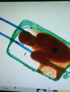 Da kofferten gikk gjennom scanneren, oppdaget operat�ren noe uvanlig