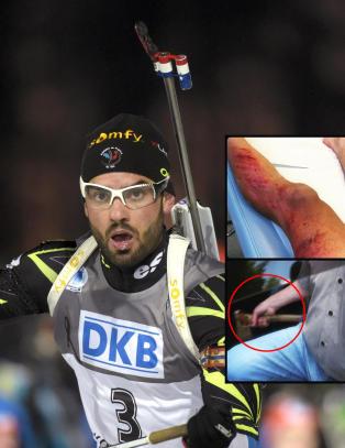 Fransk skiskytterstjerne p�kj�rt og truet med �ks av bildesperado