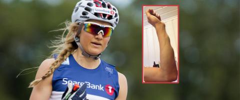 Ek Hagen falt av sykkelen: - Armen ser helt deformert ut