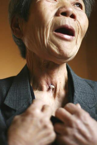 FIKK KREFT: Lv Huilan (66) fikk strupekreft. Foto: Scanpix/Reuters