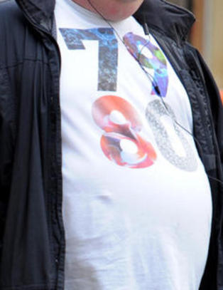 David Cameron vil kutte st�naden til overvektige hvis de nekter � g� ned i vekt