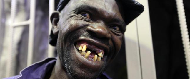 Raser mot �Mister Ugly�-vinner:  - Jeg er naturlig stygg. Han er bare stygg n�r han �pner munnen