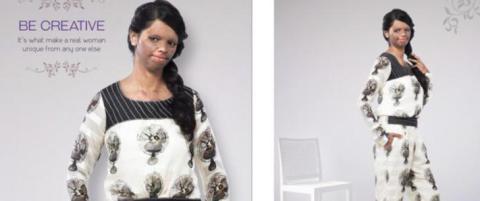 Overlevde syreangrep - n� str�ler hun som modell