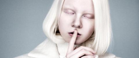 Modellen Andrea (22): - Jeg hadde g�tt glipp av masse artige opplevelser uten albinismen