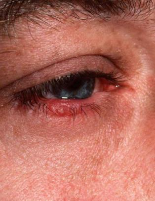 Mange vet ikke at de har denne uforutsigbare hudsykdommen