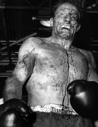 I dag er det 50 �r siden Henry Cooper s� slik ut etter en kamp mot Ali