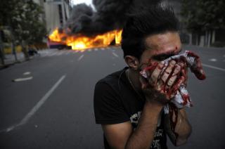 TEHERAN BRENNER: En demonstrant t�rker blod etter m�tet med oppr�rspolitiet. Foto: Scanpix/ AFP PHOTO/OLIVIER LABAN-MATTEI