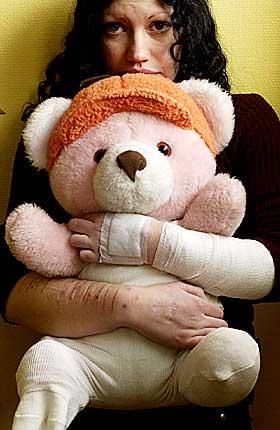 Avhengig:  Monika Jungnikels (23) armer er fulle av arr og bandasjer. Over en to- treårsperiode skar hun seg opp daglig. - Jeg var avhengig. Selvskadingen ble min måte å overleve på.