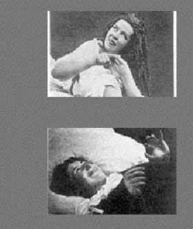 CHARCOTS EGNE PASIENTER: Kvinner med diagnosen «Hysterie».