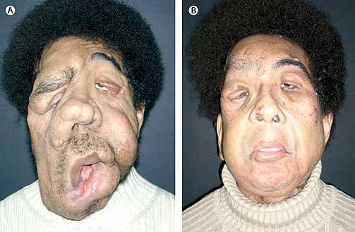 nyheter solveig ble lam i ansiktet etter operasjon s
