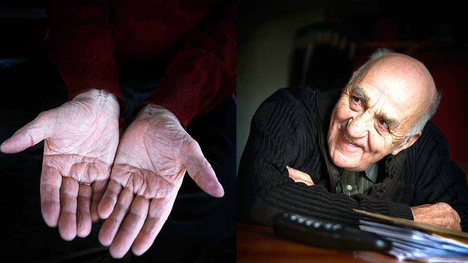 Joralf Gjerstad has a 'complete' simian line in his right hand + an 'incomplete' simian line in his left hand.